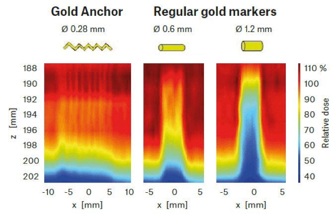 Enabling State Of The Art Radiotherapy Gold Anchor